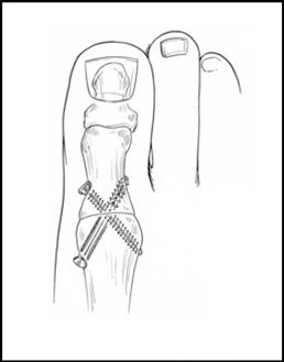 dikke voet na operatie hallux valgus